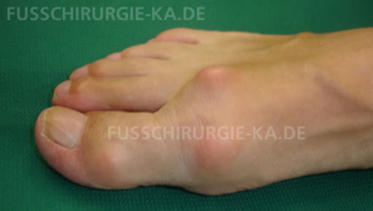 Arthrose Hallux rigidus
